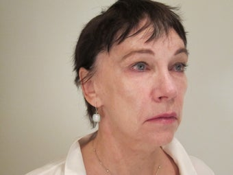 70 Year old Female - Softlift treatment (combination Juvederm & Botox)