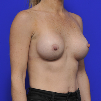 35-44 year old woman treated with Breast Augmentation after 3464087