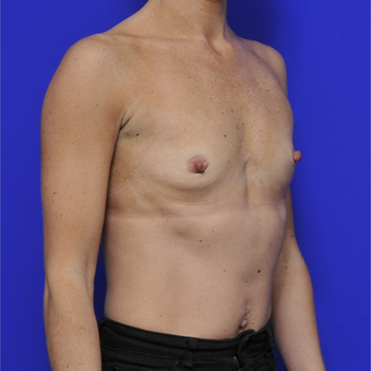 35-44 year old woman treated with Breast Augmentation before 3464087