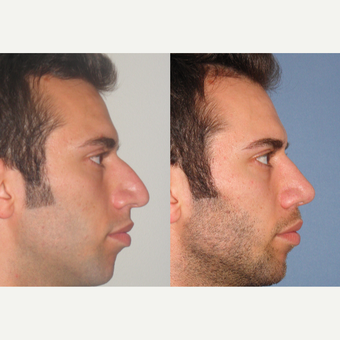 35-44 year old man treated with Rhinoplasty after 3521752