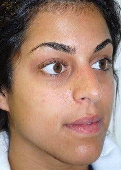 18-24 year old woman treated with Rhinoplasty before 3259291