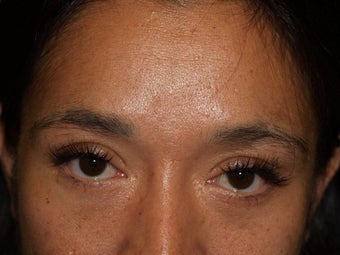 Before, Immediately After, and 1 Year After Eyebrow Transplant Procedure before 569509