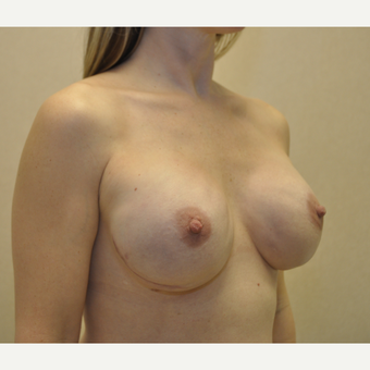 35-44 year old woman treated with Breast Reconstruction after 3127738