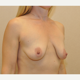 35-44 year old woman treated with Breast Reconstruction before 3127738