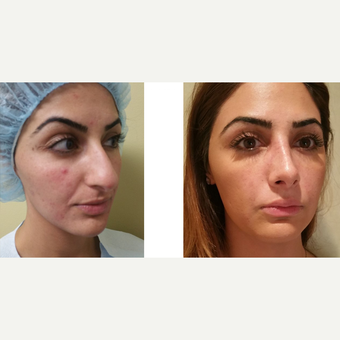 25-34 year old woman treated with Rhinoplasty before 3687068