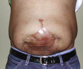 26 Year Old Male With Large Abdominal Scar before 1100649