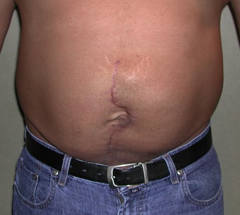 26 Year Old Male With Large Abdominal Scar after 1100649