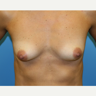 45 year old woman treated with Breast Augmentation before 3486813