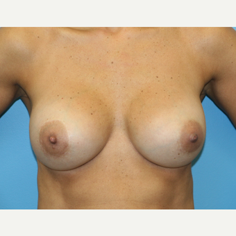 45 year old woman treated with Breast Augmentation after 3486813