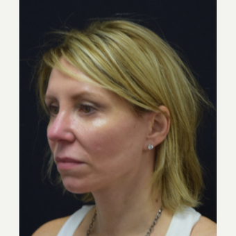 45-54 year old woman treated with Facelift after 3441786