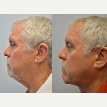 "Necklift - 68 year old male with concern of neck ""wattle"" after 3083850"