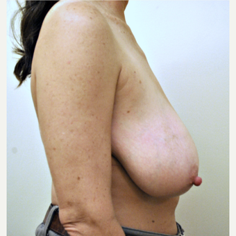 52 year-old Breast Reduction Photos before 3776366
