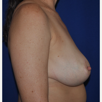 52 year-old Breast Reduction Photos after 3776366