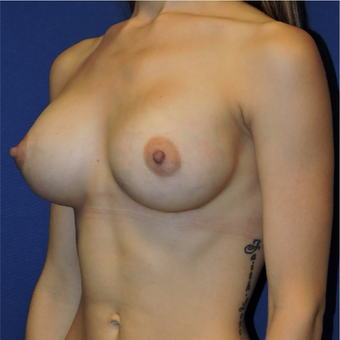 25-34 year old woman treated with Breast Augmentation after 3424297
