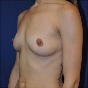 25-34 year old woman treated with Breast Augmentation before 3424297