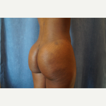 25-34 year old woman treated with Brazilian Butt Lift after 3683737