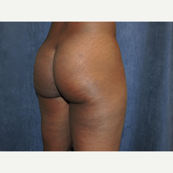 25-34 year old woman treated with Brazilian Butt Lift before 3683737
