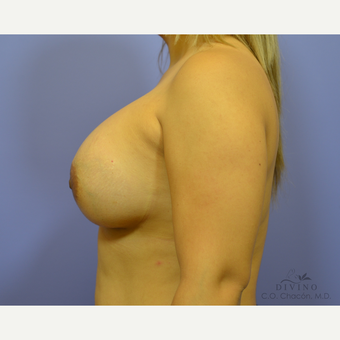 25-34 year old woman treated with Breast Augmentation after 3329329