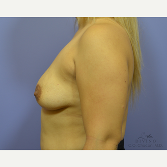 25-34 year old woman treated with Breast Augmentation before 3329329