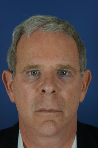 60 year male with liquid facelift after 923514