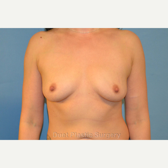 3o year old woman treated with silicone breast Implants before 3125796