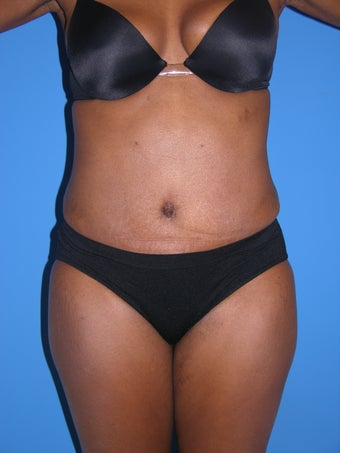 Tummy Tuck after 1044854