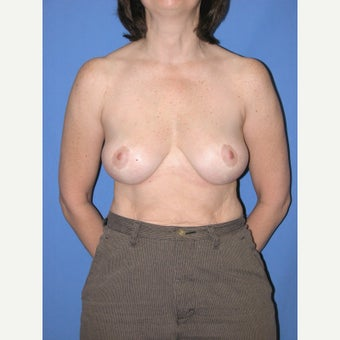 45-54 year old woman treated with Breast Reduction after 2447854