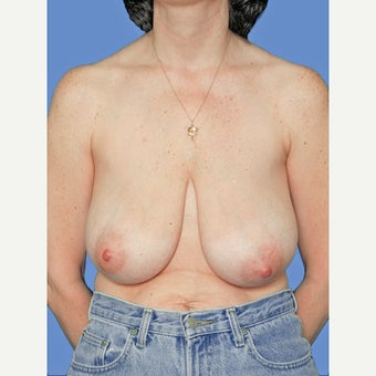 45-54 year old woman treated with Breast Reduction before 2447854
