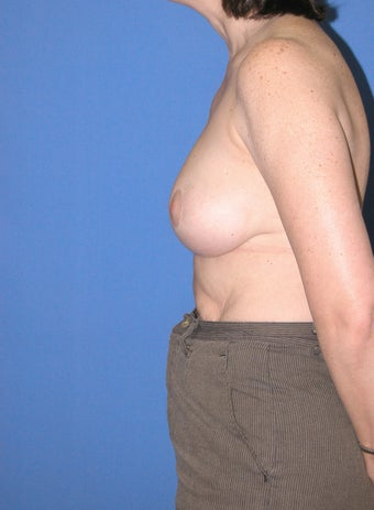 45-54 year old woman treated with Breast Reduction 2447854