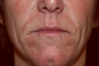 55 year old woman treated for deep wrinkles around her mouth with surgical dermabrasion. before 1219987