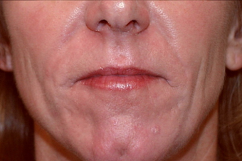 55 year old woman treated for deep wrinkles around her mouth with surgical dermabrasion. after 1219987