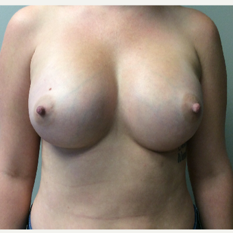 28 year old woman treated with Breast Augmentation after 3294692