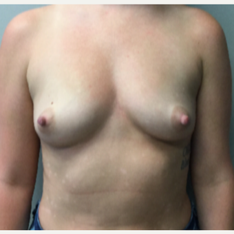 28 year old woman treated with Breast Augmentation before 3294692
