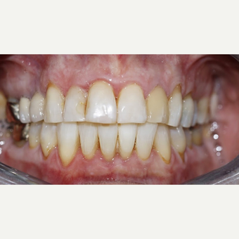 Enlighten Teeth Whitening after 3096968