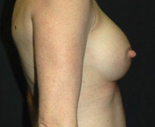 Breast Implants after 3544969