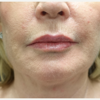 55-64 year old woman treated with Fat Transfer for her Lip Augmentation after 3130000