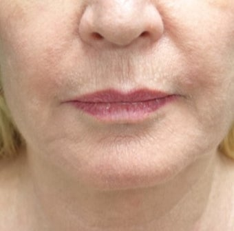 55-64 year old woman treated with Fat Transfer for her Lip Augmentation before 3130000