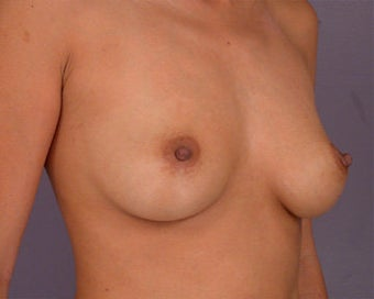 Breast Augmentation before 281408