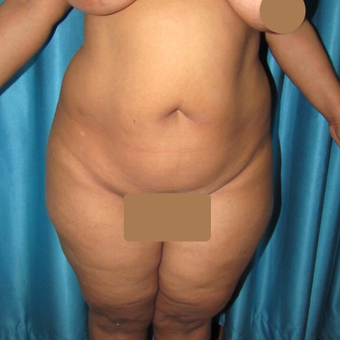 35-44 year old woman treated with Liposuction before 3221780