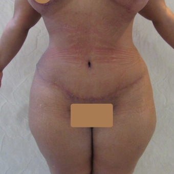35-44 year old woman treated with Liposuction after 3221780