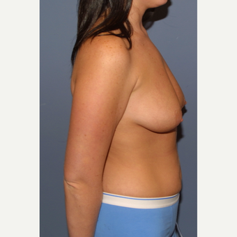 25-34 year old woman treated with Breast Lift with Implants before 3476228