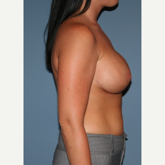 25-34 year old woman treated with Breast Lift with Implants after 3476228