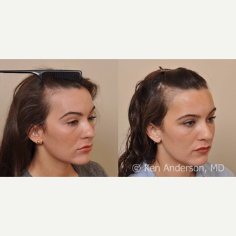 30 year old woman treated with Hair Transplant after 3009535