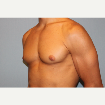 25-34 year old man treated with Male Breast Reduction before 3565065