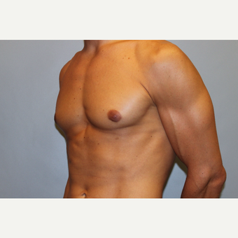 25-34 year old man treated with Male Breast Reduction after 3565065