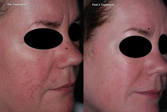 IPL for facial veins after 1171892