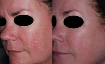 IPL for facial veins before 1171892