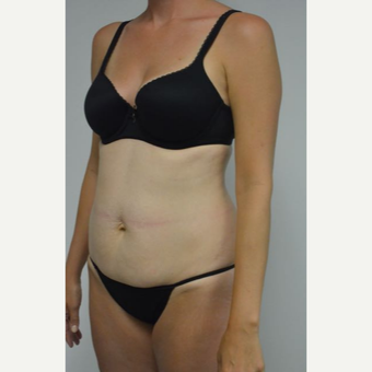 35-44 year old woman treated with Tummy Tuck and liposuction of her flanks and lower back before 3459014