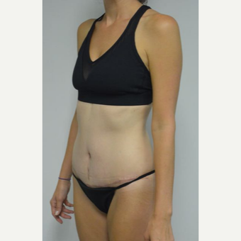 35-44 year old woman treated with Tummy Tuck and liposuction of her flanks and lower back after 3459014