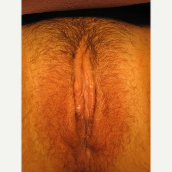22 year old woman treated with Labiaplasty after 1551783